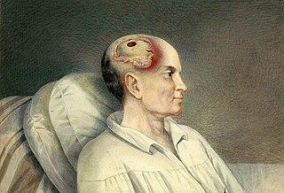 Head injury Serious trauma to the cranium
