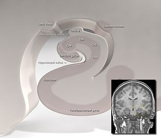 Anterograde amnesia - Hippocampus (brain)