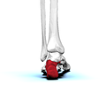Left Calcaneus02 posterior view.png