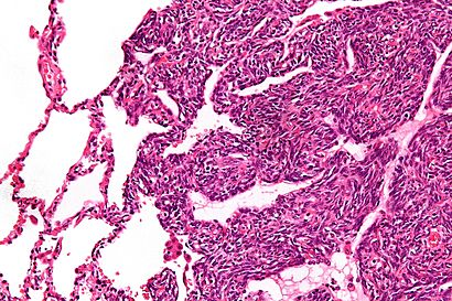 Monophasic synovial sarcoma - high mag.jpg