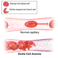 a case study of the effects of mutation sickle cell anemia The following case study focuses on a 35-year-old male who was evaluated for microcytic anemia case study: microcytic anemia cell aplasia tmprss6 mutation.