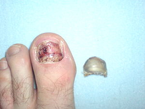 Big toe after the nail removed