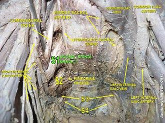 Sacral spinal nerve 1 - Image: Slide 17y