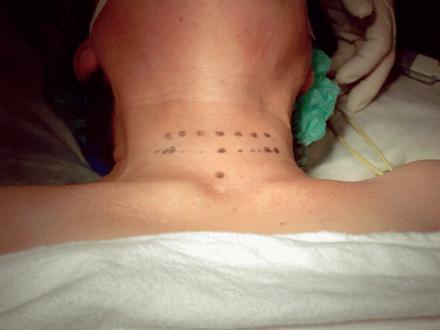 behandlung thyreotoxische krise