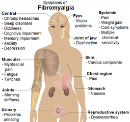 http://commons.wikimedia.org/wiki/File:Symptoms_of_fibromyalgia.png
