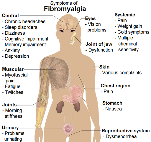 May Manuel fibromylgia facial nerve