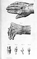 Symptoms of gout in human hand, 1881. Wellcome L0000676.jpg