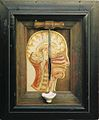 Trephining of the Skull, 1895 F.jpg