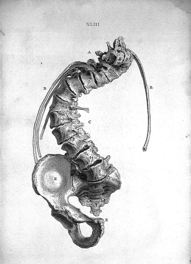 'Part of the trunk of a crooked skeleton' Wellcome L0022317.jpg