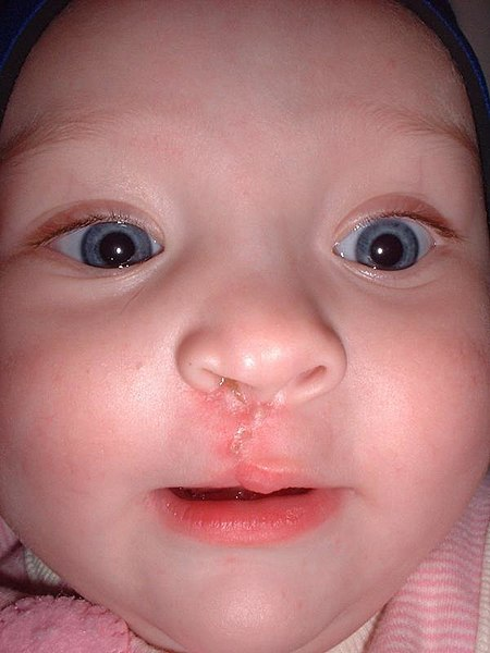 File:10-month-old girl showing scar from facial reconstruction surgery for cleft lip.jpg