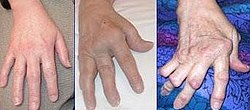 Arthrite rhumatoide.jpg