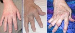 Rheumatoid arthritis - affected joints of the hand