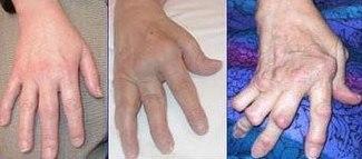 El aliviar artritis de para dolor gel rodilla