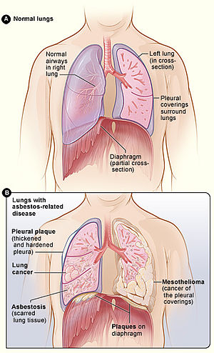 Asbestos related diseases wikipedia figure a shows the location of the lungs airways pleura and diaphragm in the body figure b shows lungs with asbestos related diseases including pleural ccuart Choice Image