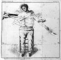 "B.A. Richerand ""Nosographie..."", 1821; bandaging Wellcome L0016490.jpg"