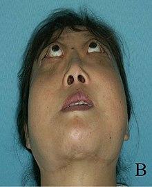arthrite juvénile