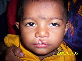 Cleft lip child.jpg