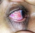 Conjunctivitis disease.jpg