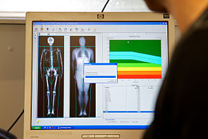 Dual-energy X-ray absorptiometry - A full-body scan appearing on the screen of a computer linked to a DEXA scanner