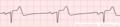 De-Rhythm sinusbradycardia (CardioNetworks ECGpedia).png