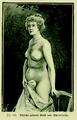 Die Frau als Hausärztin (1911) 142 Schlecht gebaute Brust und Schnürfurche.png