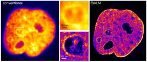 Super-resolution microscopy - Wikipedia