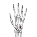 Hamulus of hamate (left hand) 01 palmar view.png