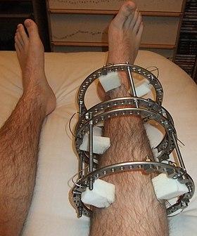 Ortho Dog Brace Reviews