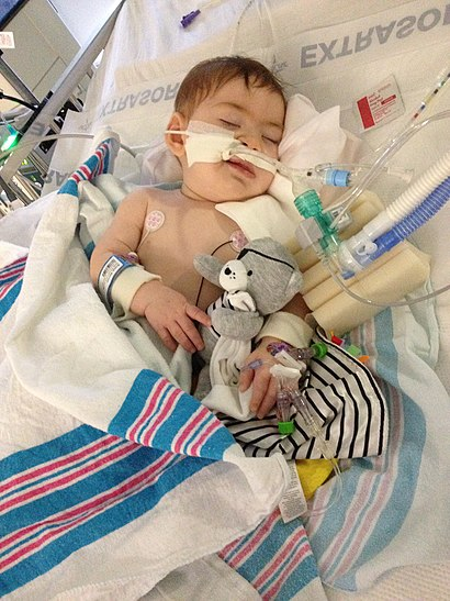Infant botulism patient.jpeg
