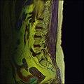 Lumbosacral MRI case 11 03.jpg
