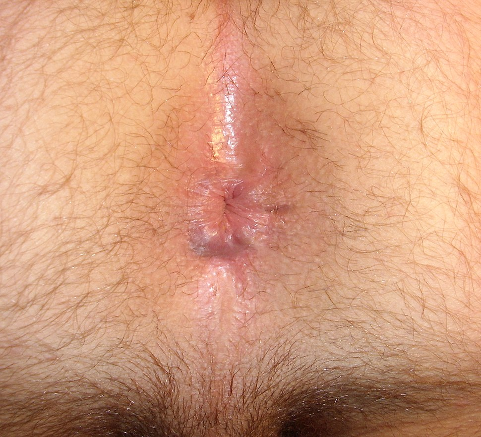 dome-shaped-pimple-anus
