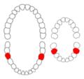 Mandibular first molars01-01-06.png