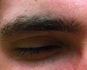 Microsleep - Eyelid closed, demonstrating microsleep event according to eye-video test