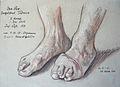 Otto Sohn-Rethel 25.10.1916 Verwundung Granatsplitter Fuß.JPG