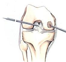 Preparate pentru tratamentul osteocondrozei coloanei vertebrale lombare