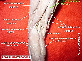 Semitendinosus muscle - Image: Slide 2j