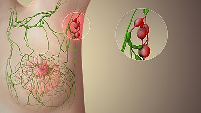 A still from a 3D medical animation showing enlarged Lymph nodes. Swollen Lymph Nodes.jpg