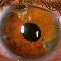 Teil-Irisprothese nach Koch, implantiert (links unten) nach Irisverletzung – Spaltlampenphotographie 2005.jpg