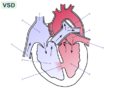Ventricular septal defect-null.png