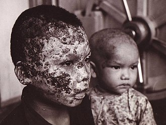 Napalm burn victims during the war being treated at the 67th Combat Support Hospital Viet nam Tragedy.jpg