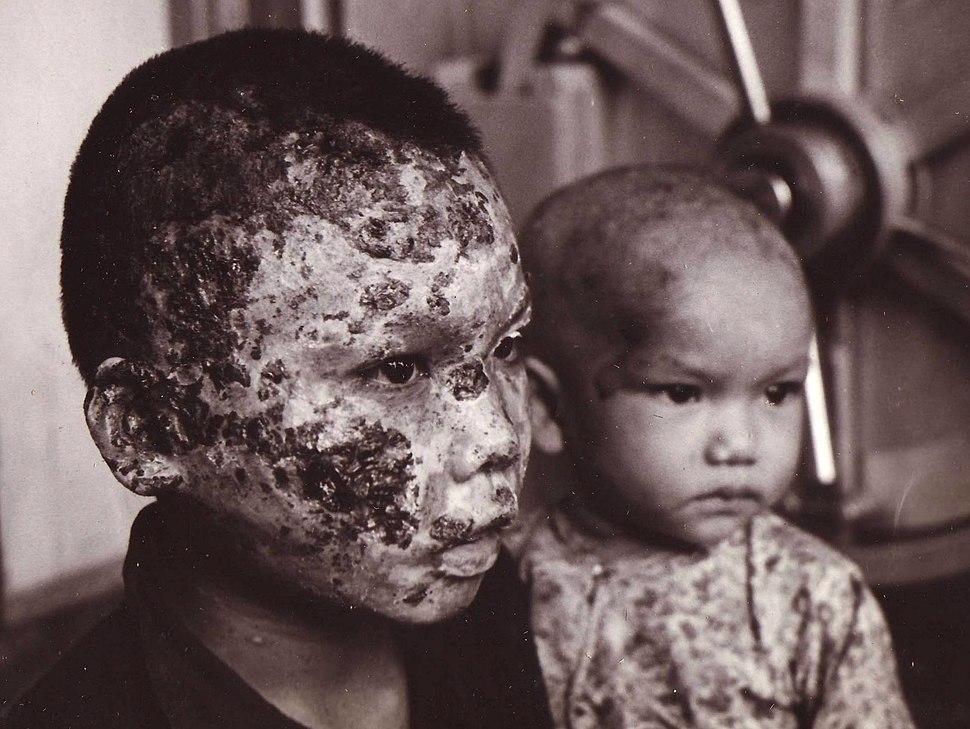Viet nam Tragedy