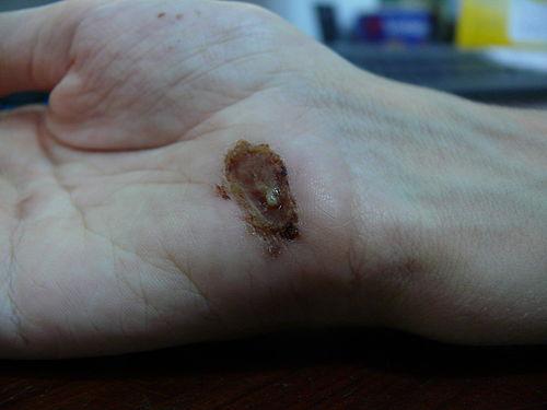 Healing Hands Day Spa