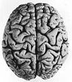 03 2 facies dorsalis cerebri gyri.jpg