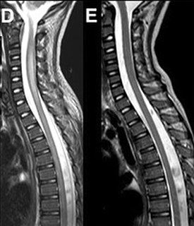 Acute flaccid myelitis Condition of the spinal cord with symptoms of rapid onset of arm or leg weakness