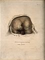 A bottom with an aneurism on the buttock and scrotum. Colour Wellcome V0009649.jpg