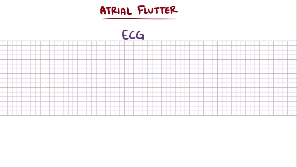 file atrial flutter webm