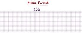 File: Atrial flutter.webm