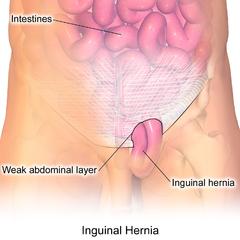 inguinal hernia the british hernia centre - 1018×914