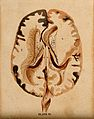 Brain; horizontal section showing lateral ventricles. Waterc Wellcome V0008414EL.jpg