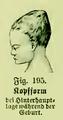 Die Frau als Hausärztin (1911) 195 Kopfform bei Hinterhauptlage während der Geburt.png